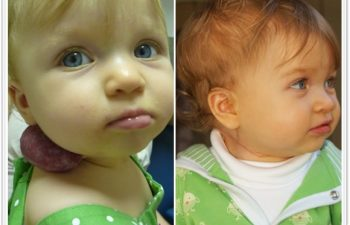 (a) 12 month old with right neck compound hemangioma; (b) 1 month postoperative result