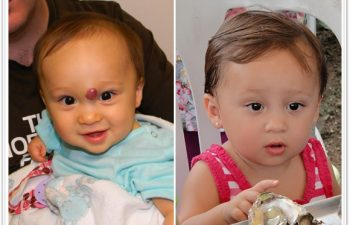 a) 9 month old with mid-forehead compound hemangioma (non responsive to propranolol therapy); b) 3 month follow up with well healed scar avoiding eyebrow displacement