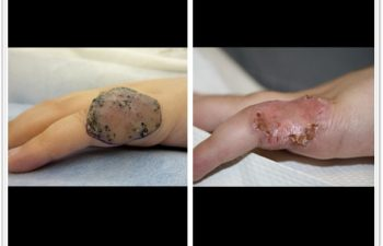 (a) Left hand lymphatic malformation; (b) 6 week postop result after skin graft repair