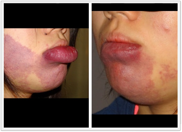 (a) 14 year old with port wine stain of the lip; (b) 3 month postop result with scar hidden within the inner lining of the lip