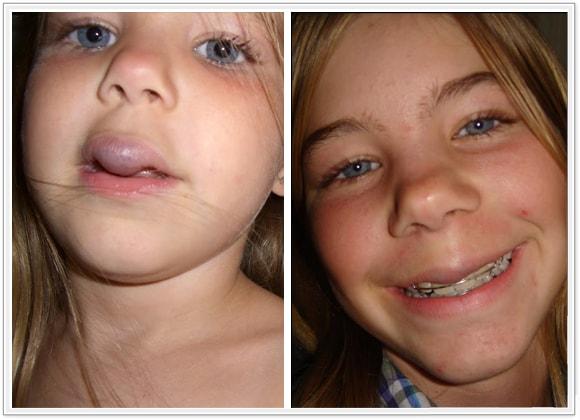 young-girls-facial-vascular-malformation-top-ten