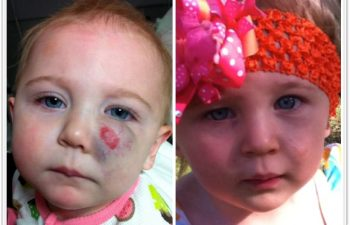 (a) 10 month old with left cheek compound hemangioma, not responsive to propranolol; (b) 3 month postoperative result; (c) 1 year postoperative result