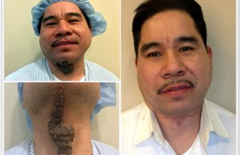 (a) Preop Sebacous Nevus of the neck, (b)Vertical extension to chin, (c)3 month postoperative result from one surgery