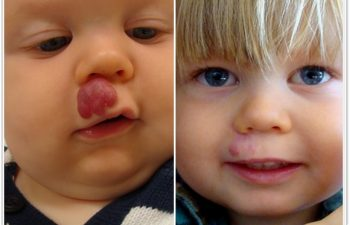 (a) Preop of compound hemangioma of upper lip that was unresponsive to medical and laser therapy; (b) 6 month postoperative result