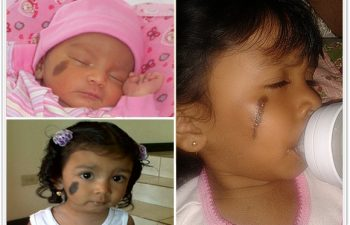 (a)Congenital hairy nevus of right cheek at birth; (b)Further darkening and stretching after 18months, no treatment; (c)Current result after 3 stage serial excision (no tissue expander), awaiting final excision