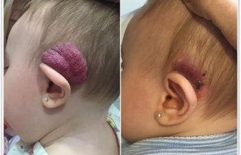 (a) Preop hemangioma of ear; no response to oral propranolol; (b) Two week postoperative result, awaiting additional laser therapy to residual skin.