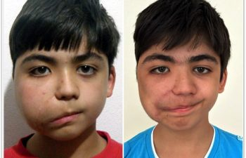 (a) 11 year old preop: previous incomplete surgery causing facial nerve paralysis; (b) 4 month postop result from surgical debulking and reconstruction (Dr. Levitin) and facial nerve reanimation (Dr. Mashkevich)