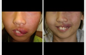 (a) 13 year old with left upper lip port wine stain hypertrophy; (b) 3 month postoperative result