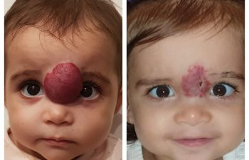 Little Noor came all the way from Kuwait to get her hemangioma surgery just in time for her first birthday!