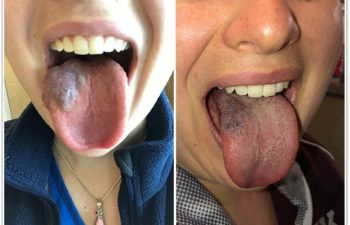 (a) This young woman with a venous malformation of her tongue had gradual swelling, pain, and difficulty with speech and swallowing; she came to the Vascular Birthmark Center to see what treatment options were available (b) After three laser treatments and one surgery, her tongue is now back to normal size, shape and contour; she can eat and speak without any problems! (the color does not bother her).
