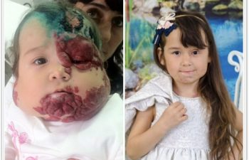 (a) 12-month-old with extensive segmental hemangioma with ulcerations; (b) 1 year follow up after 2-stage reconstruction with left eye open and functional; removal of ulceration/scars of the scalp and reconstruction of nose