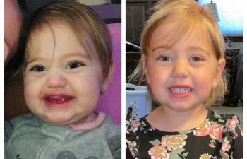 """Here is a great example of how one surgery can make all the difference! This photo is just from a year later, and I had to go find the """"before"""" photo to remind myself of just how big this lip hemangioma was! Keep smiling :)"""