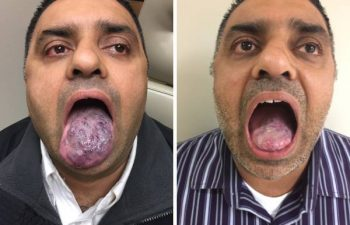 A: Venous malformation of the tongue. B: Postop result after one surgery and 3 YAG laser treatments. This hard working family man never took the time to get his birthmark looked at until his wife finally told him that his snoring was out of control. It turns out the venous malformation of his tongue was swelling up during sleep and causing him to have obstructive sleep apnea. When we met, I was able to first perform an office endoscopy to confirm his venous malformation was limited to just the tongue, and then we planned a treatment with laser therapy to be followed by a tongue debulking. Now he has a normal appearing tongue, can eat, swallow and talk normally; and more importantly, has no more sleep apnea, only mild snoring, and his wife can finally sleep through the night. #venousmalformationtongue #tonguebirthmark #happywifehappylife