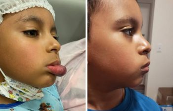 """I am delighted to share these photos of a brave young boy who recently underwent an excision of a venous malformation. This was a challenging case due to the extensive hypertrophy of the lower lip over the years, as he was originally diagnosed as a """"hemangioima"""" that never went away. Even though these photos are just 5 days after surgery, you can already see we achieved the proper shape and length of the lower lip in just one surgery. He is super-excited to have surgery behind him, and looking forward to showing his friends his """"new"""" lip when he starts school in another week. #DrLevitinSurgery #OneandDone #Notahemangioma #venousmalformation #birthmarkremoval #SummerSurgery #VBCNewYork"""