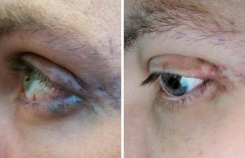 This patient still had residual venous malformation around the eyelids and orbit for several years after a debulking suegery. So we re-started YAG laser treatments (after a Covid-pause) and now he is seeing the results he had always hoped for! Stay strong, stay positive!